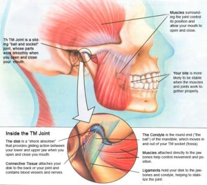 What Are the Symptoms of Jaw Pain?